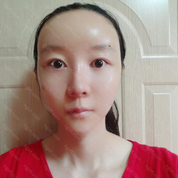 今天是术后的第3天脸依然还是挺肿的