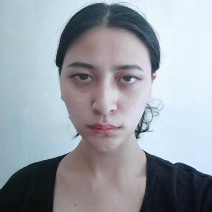 终于鼓起勇气公开我在青岛艾菲医疗美容做定点双眼皮的经历。