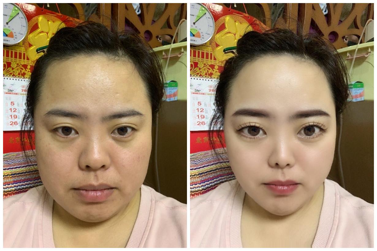 模拟面部吸脂手术和鼻综合手术恢复效果图。