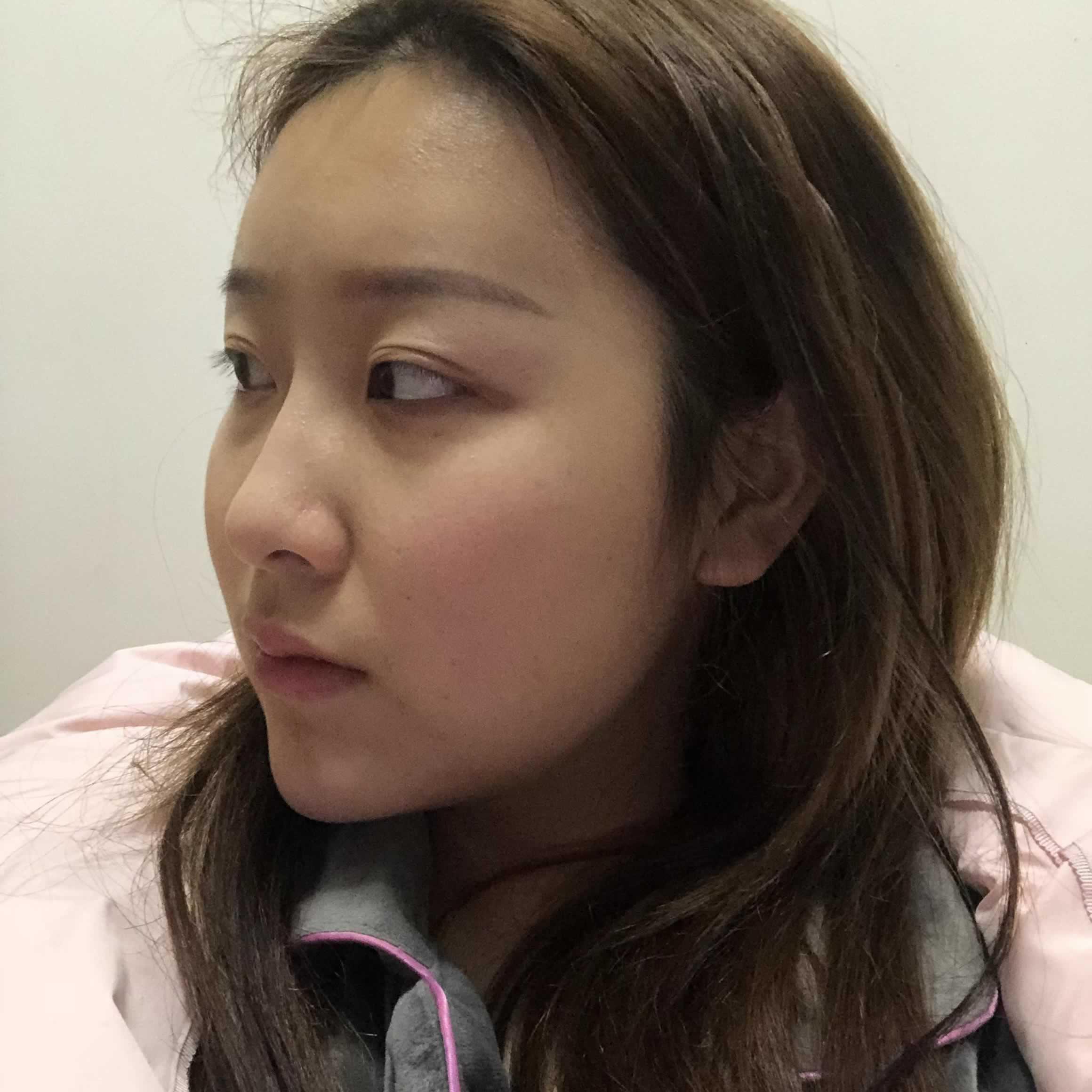 我做了面部吸脂手术,因为我觉得带着面罩真的是太傻了