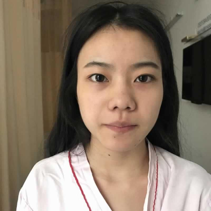双眼皮+开内眼角恢复图安利出来给集美们看下,深圳鹏程医院做的就是好。