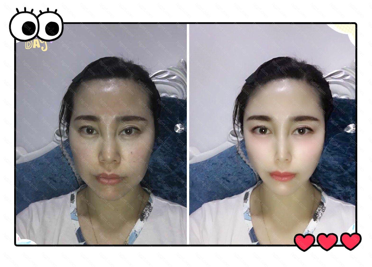 帮小姐姐模拟的注射瘦脸针+切开双眼皮效果对比图!