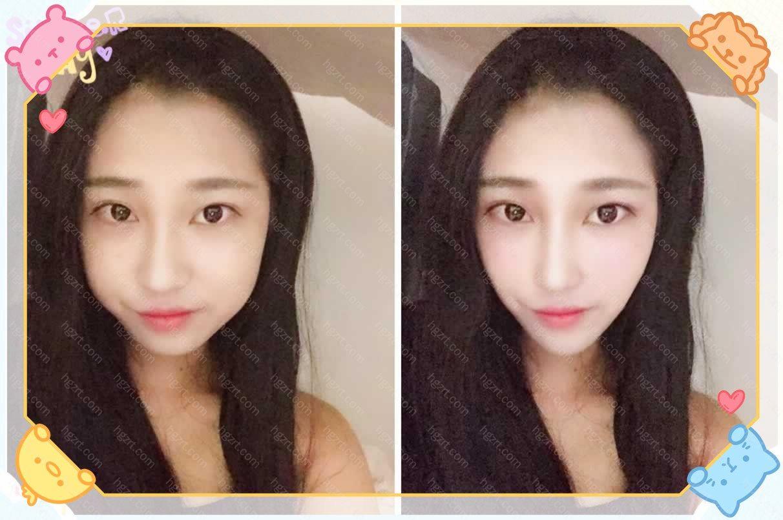 给小姐姐模拟的V-LINE瓜子脸+鼻翼缩小手术前后对比图