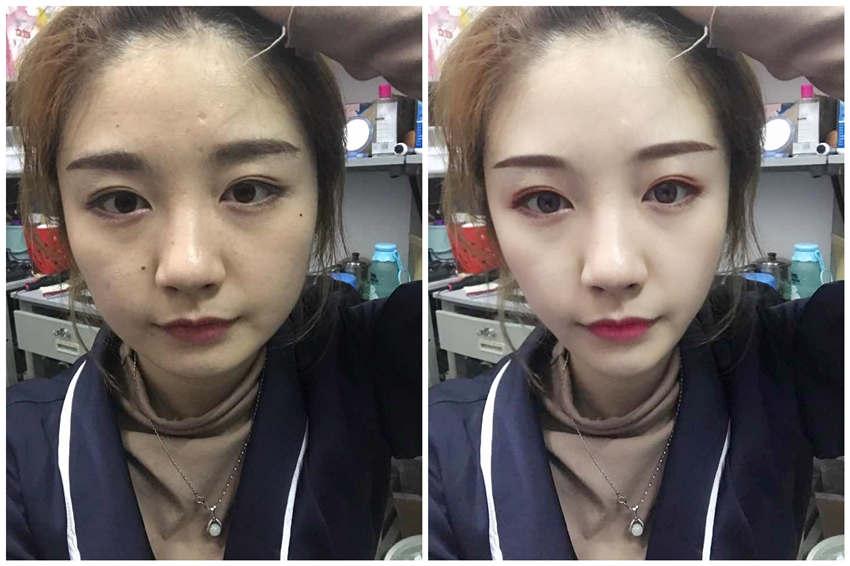 给小姐姐模拟了面部吸脂术后效果图。