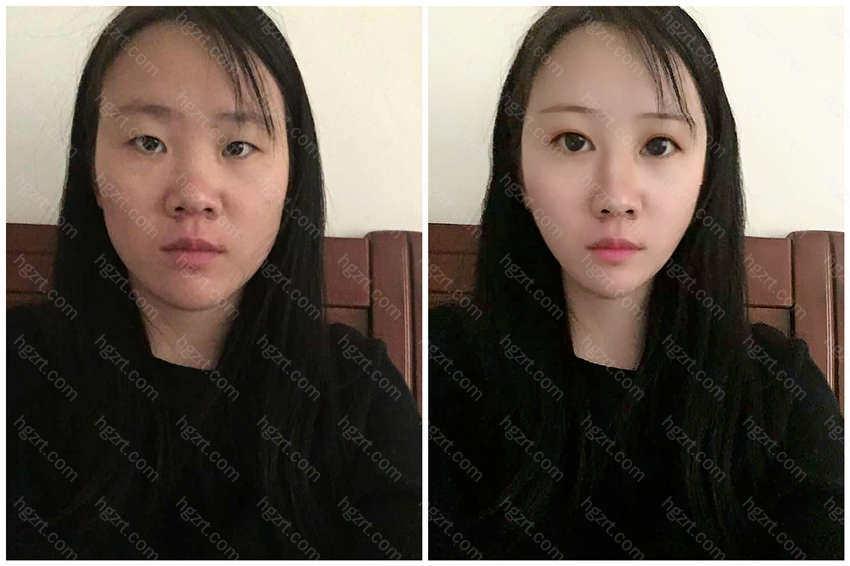 双眼皮手术让眼睛更大了许多
