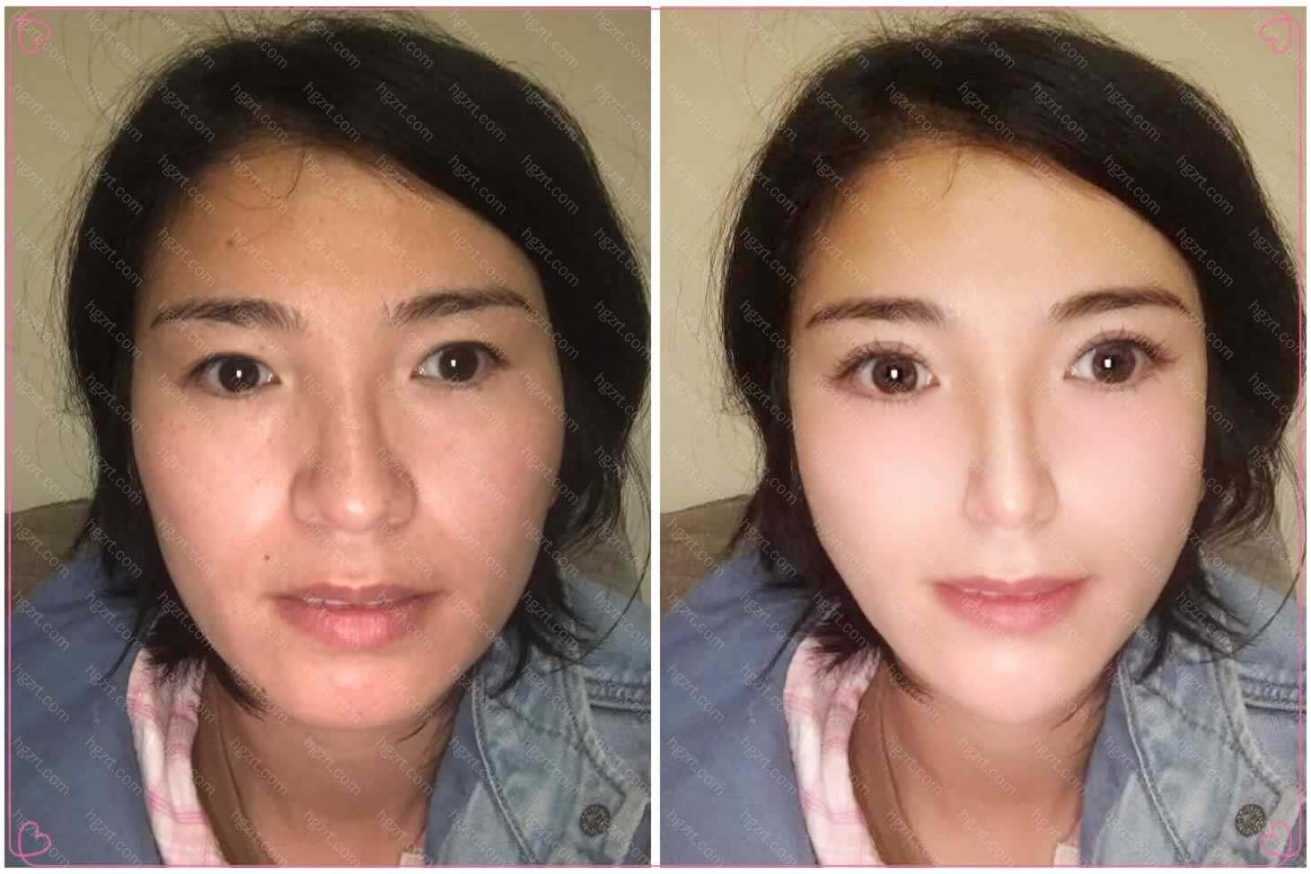 模拟面部脂肪填充后直接逆龄了