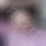 济南名韩医疗美容怎么样?种植发际线恢复过程分享在此