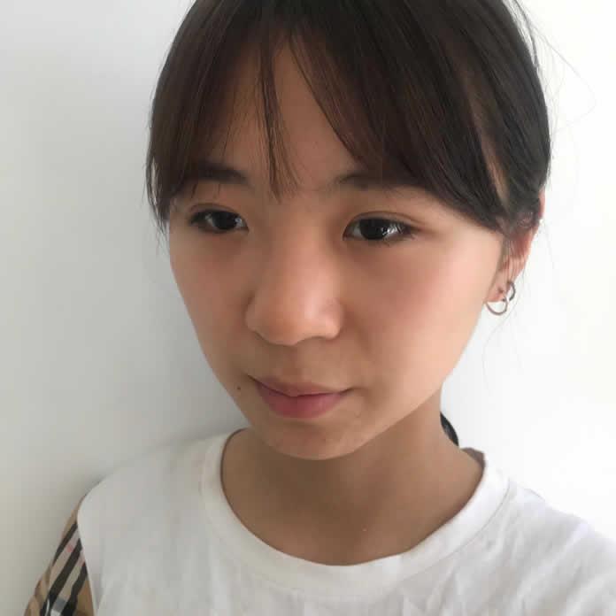 太原军大医疗美容韩式生科+耳软骨垫鼻尖价格便宜而且效果好。