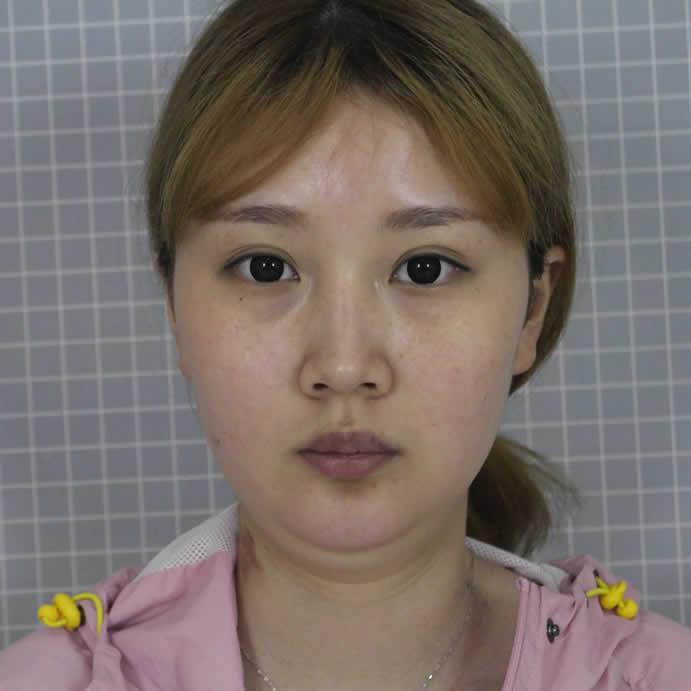 杭州艺星医疗美容面部吸脂手术太棒了,我也是大美女啦!