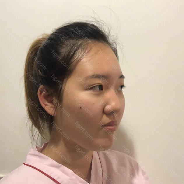 我长相不好看主要就是因为我的鼻子很丑啊