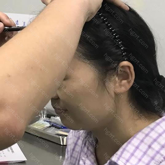 这是我来做植发手术的一个大概流程吧