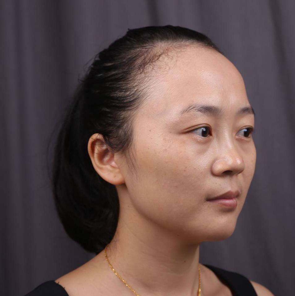 台州市纳恩妮亚植发怎么样?来看俺种植发际线窥探一二?