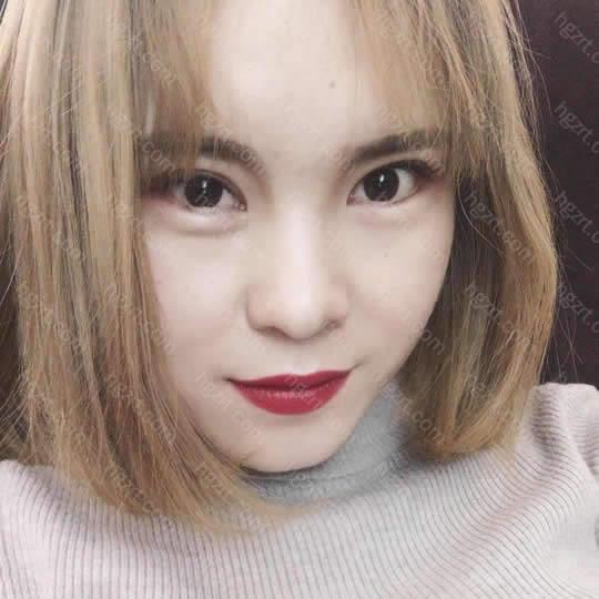 我是在重庆艺星yestar整形做的眼部修复啦