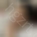 终于做鼻部多项手术,效果十分的满意,来看看我的恢复过程