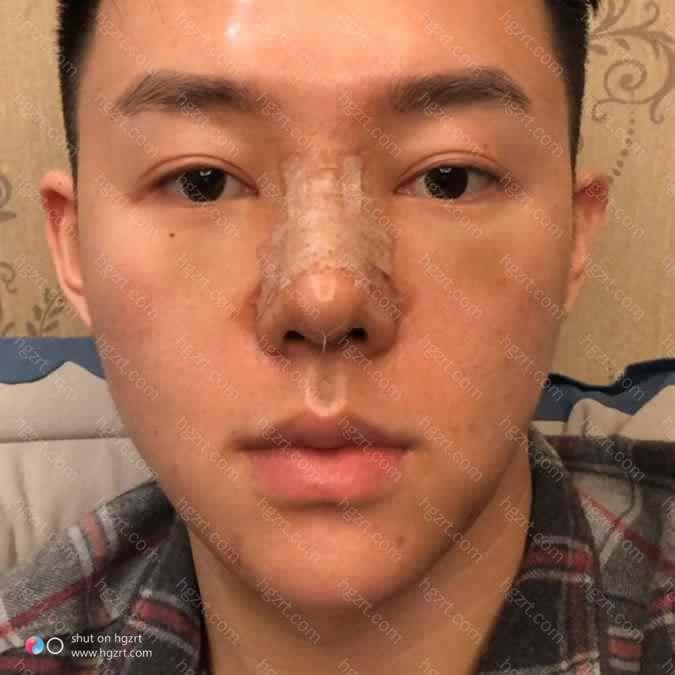 医生说我五官就是鼻子特别不如意