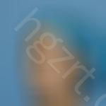 做完自体脂肪全脸填充手术后,我的面部变得更加饱满有活力了。