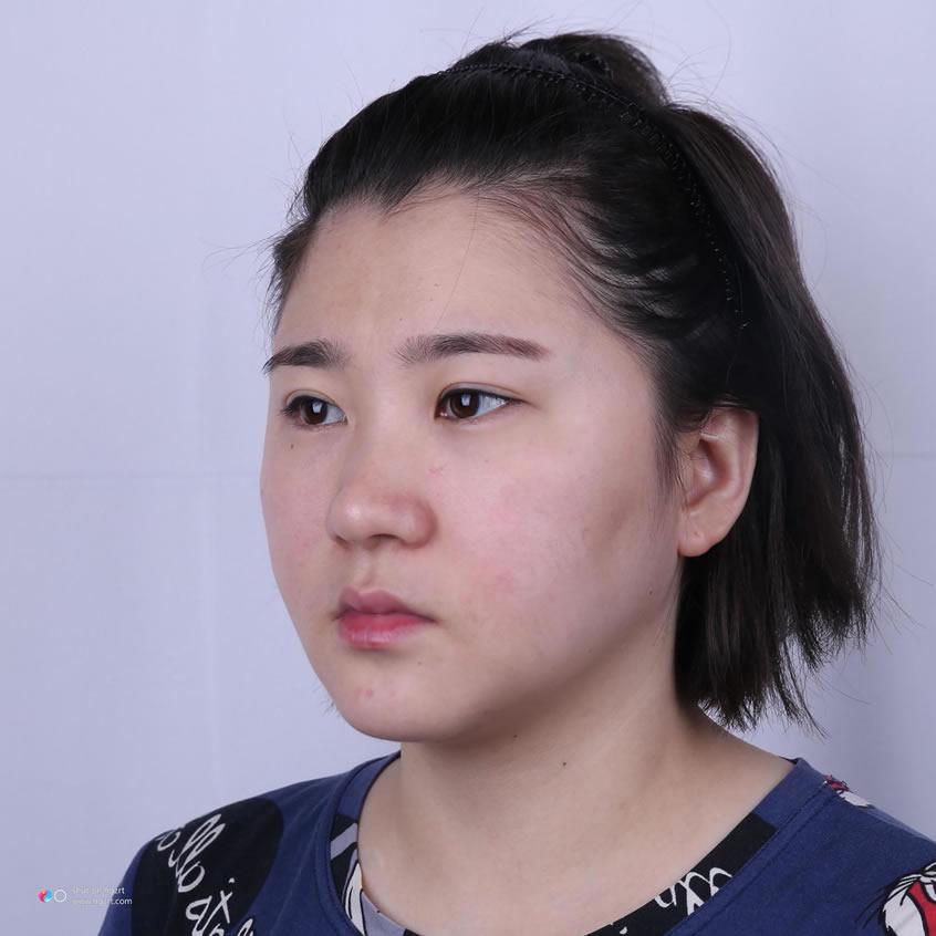 重庆军科整形么样?我去做了面部吸脂手术来说感受啦
