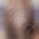 想要用图片记录我在深圳鹏程整形做完硅胶隆鼻一年的恢复效果。