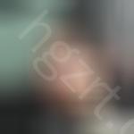 北京世济医疗美容怎么样?一波本人膨体隆鼻照片给你参考