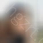 纠结了很久是去上海美莱还是上海艺星,面诊完之后决定去上海美莱做了自体脂肪填充效果面部不错