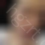珠海美南华医疗美容怎么样?公布硅胶隆鼻+假体垫鼻尖真实案例对比
