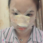 如何避免硅胶隆鼻做失败,选择深圳美颜医疗美容我很放心。