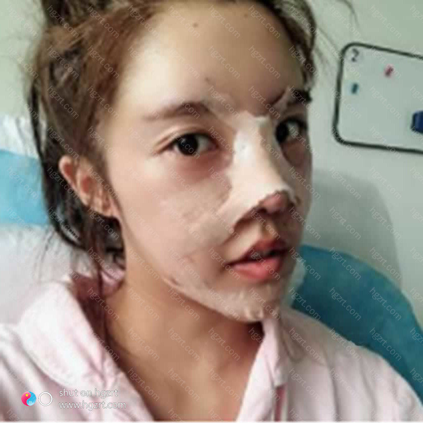 为何别人的鼻部是韩式小翘鼻