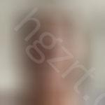 想要拥有韩式小翘鼻,看我在成都做的鼻综合手术效果图。