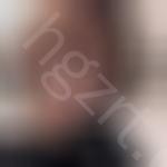 广州美莱医疗美容医疗美容门诊部怎么样?这是我在这做切开双眼皮的案例