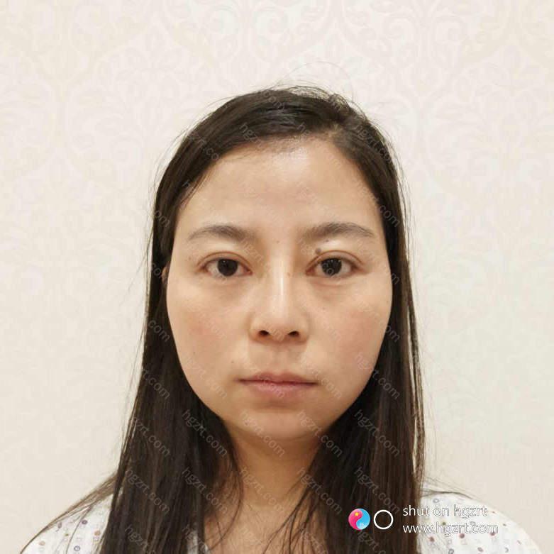 脸部凹陷确实会让自身显的十分的显老