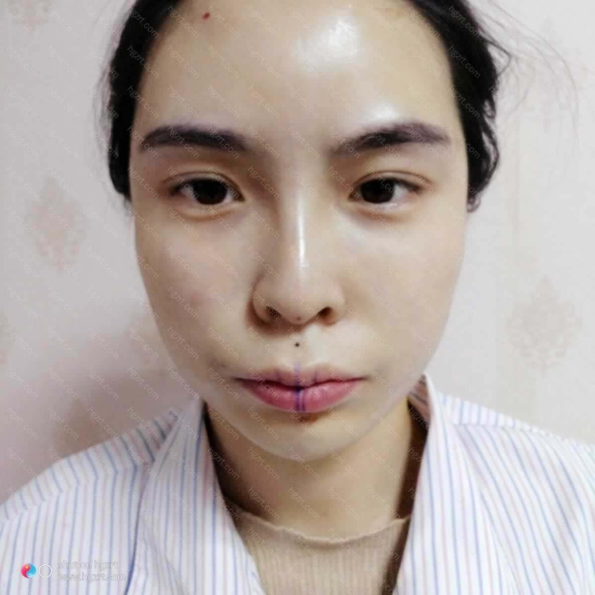 【自体脂肪全脸填充第1天】在手术前
