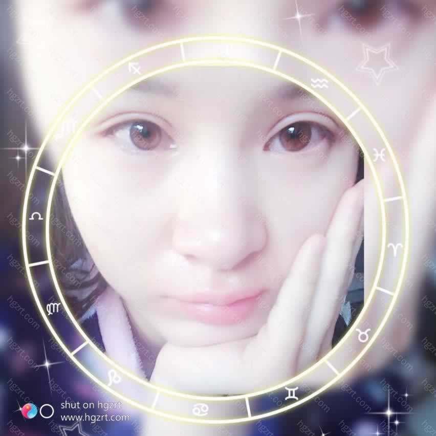 【切开双眼皮第16天】做双眼皮术后一定要注意休息