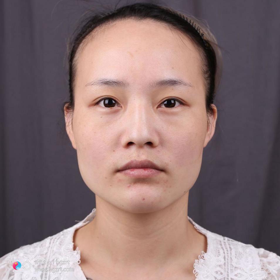 北京美来莱整形美容医院怎么样?做的下颌角整形是藏不住咯!