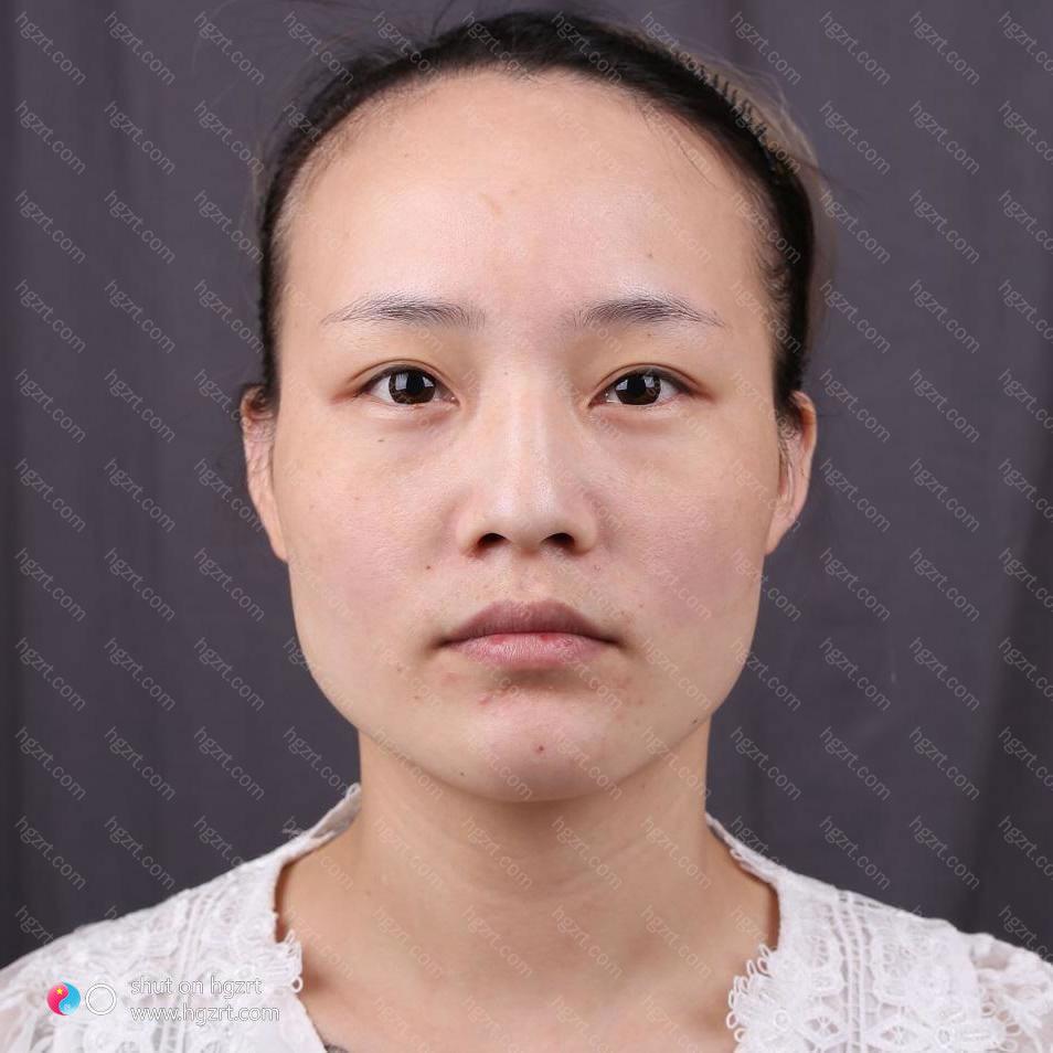 北京下颌角哪个大夫好?最大的害怕其实就是安全性的问题
