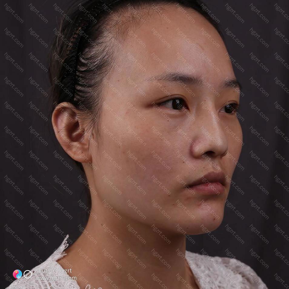 北京磨骨手术哪做的最好?你萌是不懂大腮帮子的痛苦啊