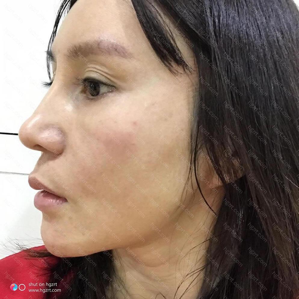 广州双眼皮手术最好的医院?真的为这个纠结了好久