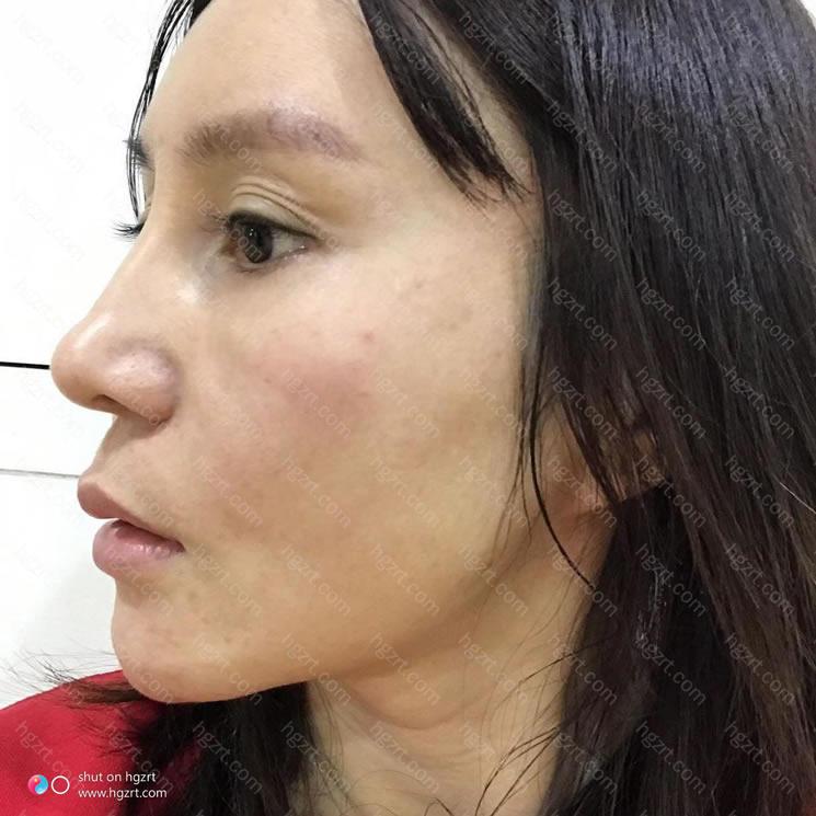 广州做双眼皮比较好的医院?讲真