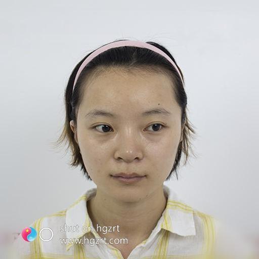 广州倍生植发医院靠谱吗信得过么,过来看我的效果你心里就有数了