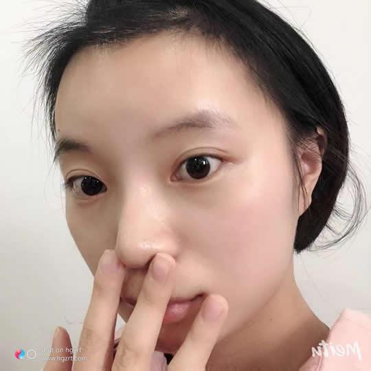 以下是广州倍生植发图片,知道的人都给的是好评价。