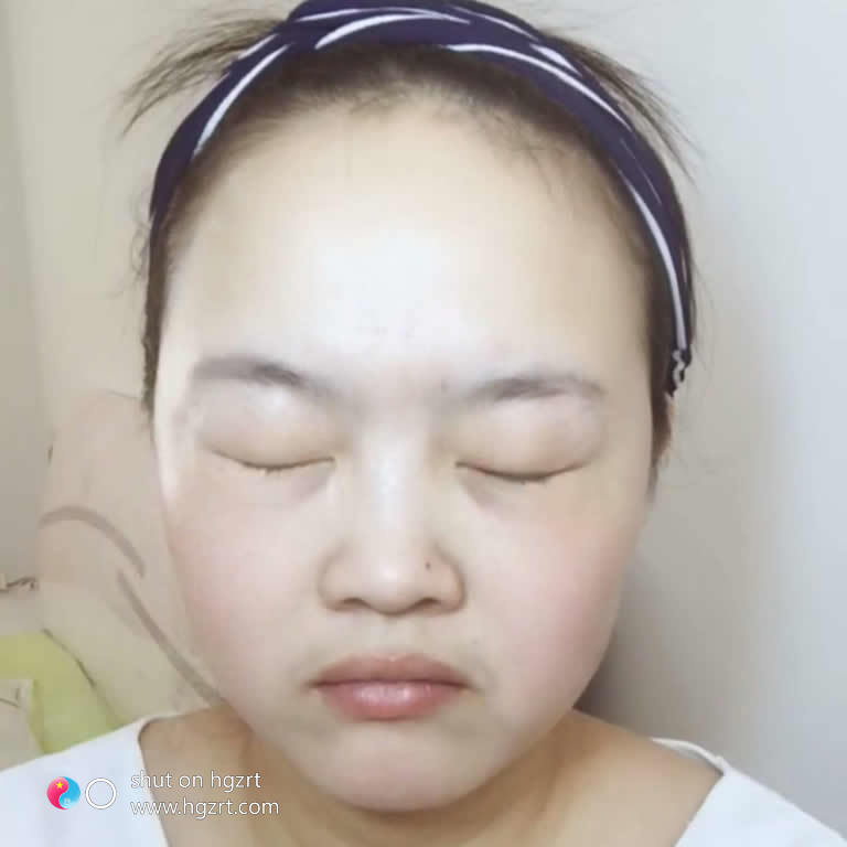 天津雅韵整形医院怎么样,瞅一下我的面部吸脂效果可还行。