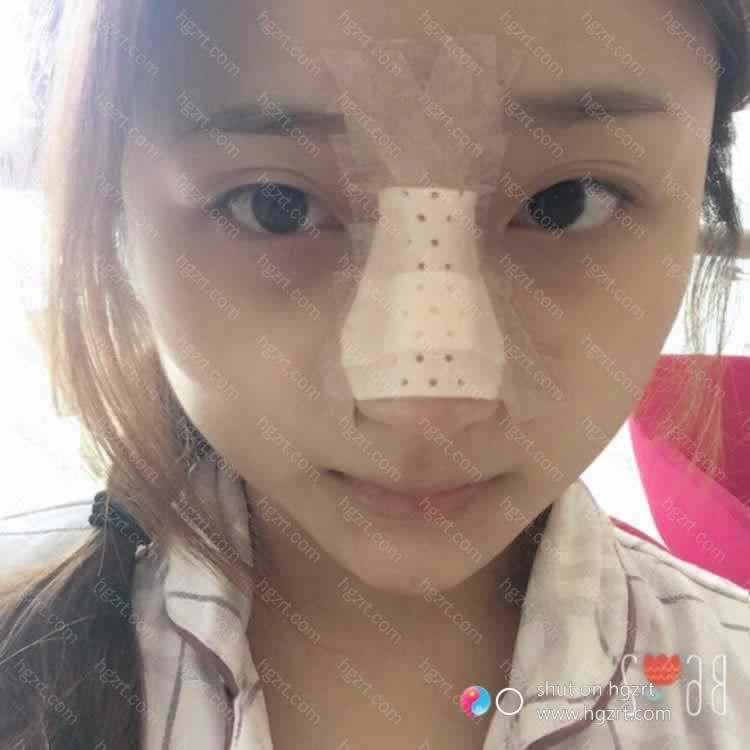 【膨体隆鼻第2天】已经习惯了在医院的生活