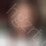 北京画美医疗美容医院怎么样?做的自体脂肪全脸填充晒一下!