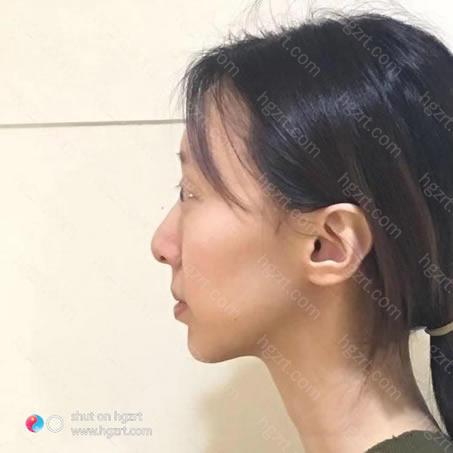 面部自体脂肪填充多久可以出效果