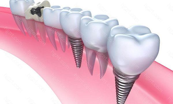 衡阳恒济医院口腔科种植牙可精确定位种植体位置,避免了手术的盲目性等引起的并发症。