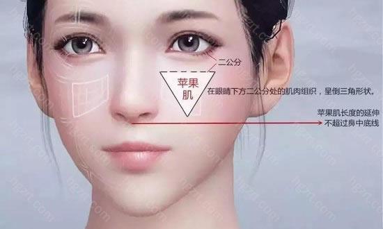 维多利亚玻尿酸丰苹果肌,能快速让扁平痿缩苹果肌越来越圆润,让脸部立体恢复,提升年轻感。