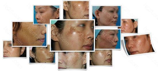 而广美整形黑色素细胞瓷白祛斑术,是广美整形色素斑医生与大连医科大学30多年的技术心血,就连治疗难度被形容为医学珠穆朗玛峰的黄褐斑都能达到80-90%的治疗率,同时还能嫩肤美白、快速还原肌肤净白年轻态。