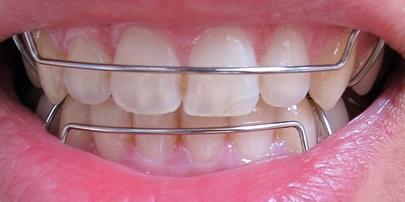 补牙和根管治疗骗局,让很多人又爱又恨,牙痛到底如何处理!_整容通