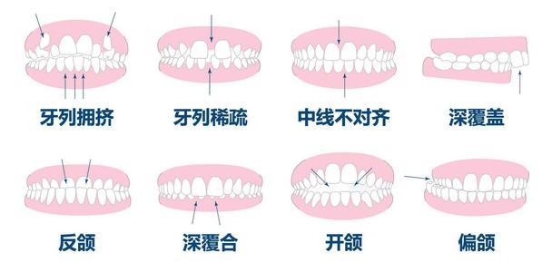 牙齿正畸有几种方式?隐形牙套效果如何?_整容通