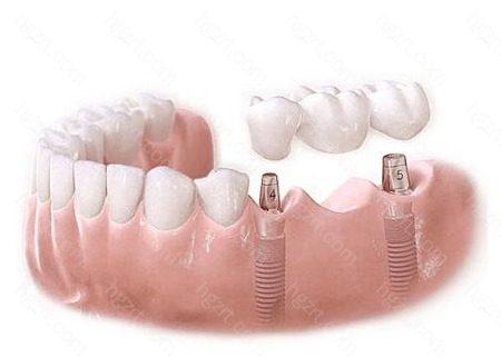 与可摘义齿和瓷牙相比
