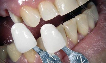 瓷贴面是指在不磨牙或不磨牙的情况下